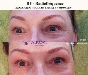 Lifting du visage avec RF - Tripolar