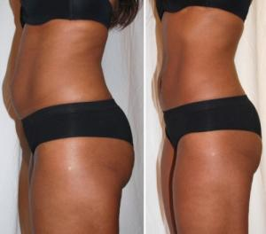 Lipo Laser - la graisse et la cellulite