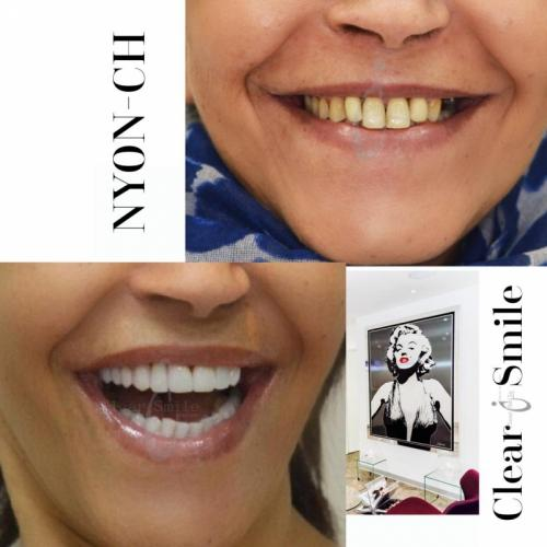 Casting pour un nouveau sourire