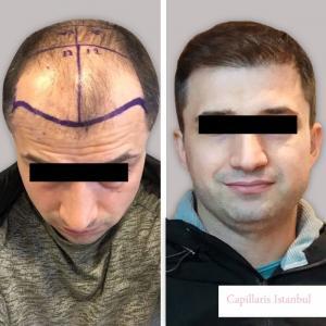 Greffe de cheveux Turquie